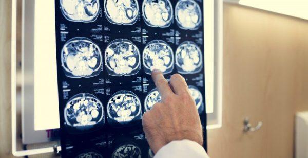 Publicado el Decreto sobre radiaciones ionizantes para la protección radiológica